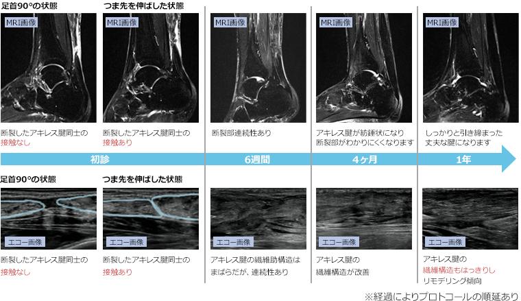 MRI画像とエコー画像