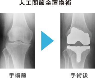 手術療法の例