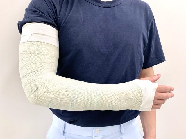 骨折 手術 手首