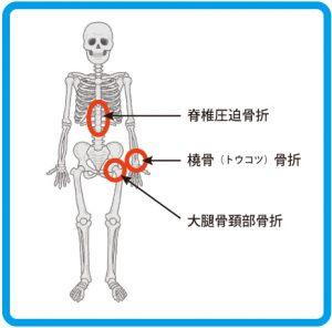 骨粗しょう症_好発部位